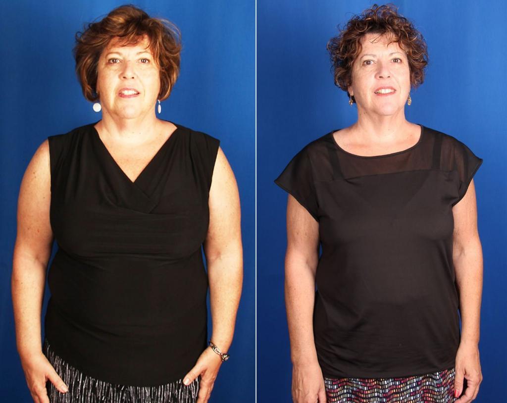 Фото Похудевших На Огуречной Диете. Огуречная диета для похудения: меню на неделю, советы диетологов и отзывы об эффективности монодиеты (130 фото)